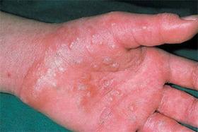 Eczema:Symptom|Cause|Treatment Urmil Skin Clinic |