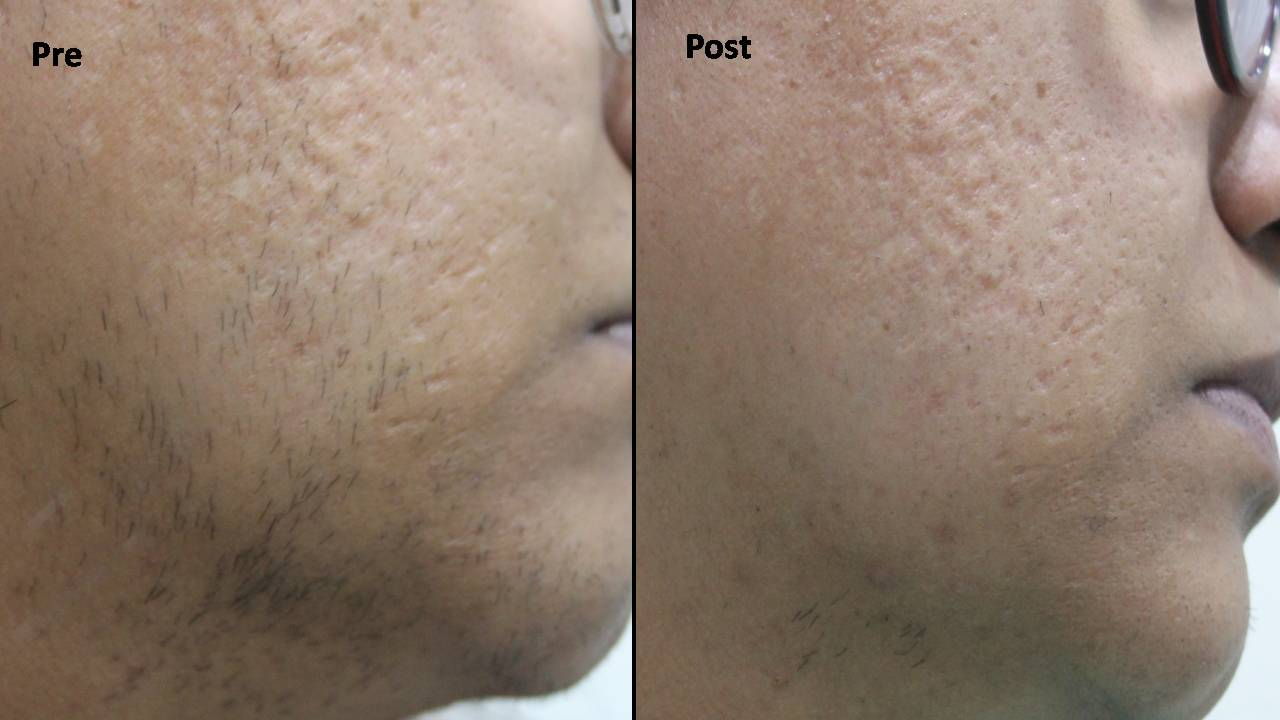 laser hair removal4