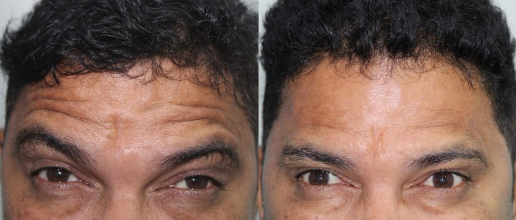 Anti-aging-after-before