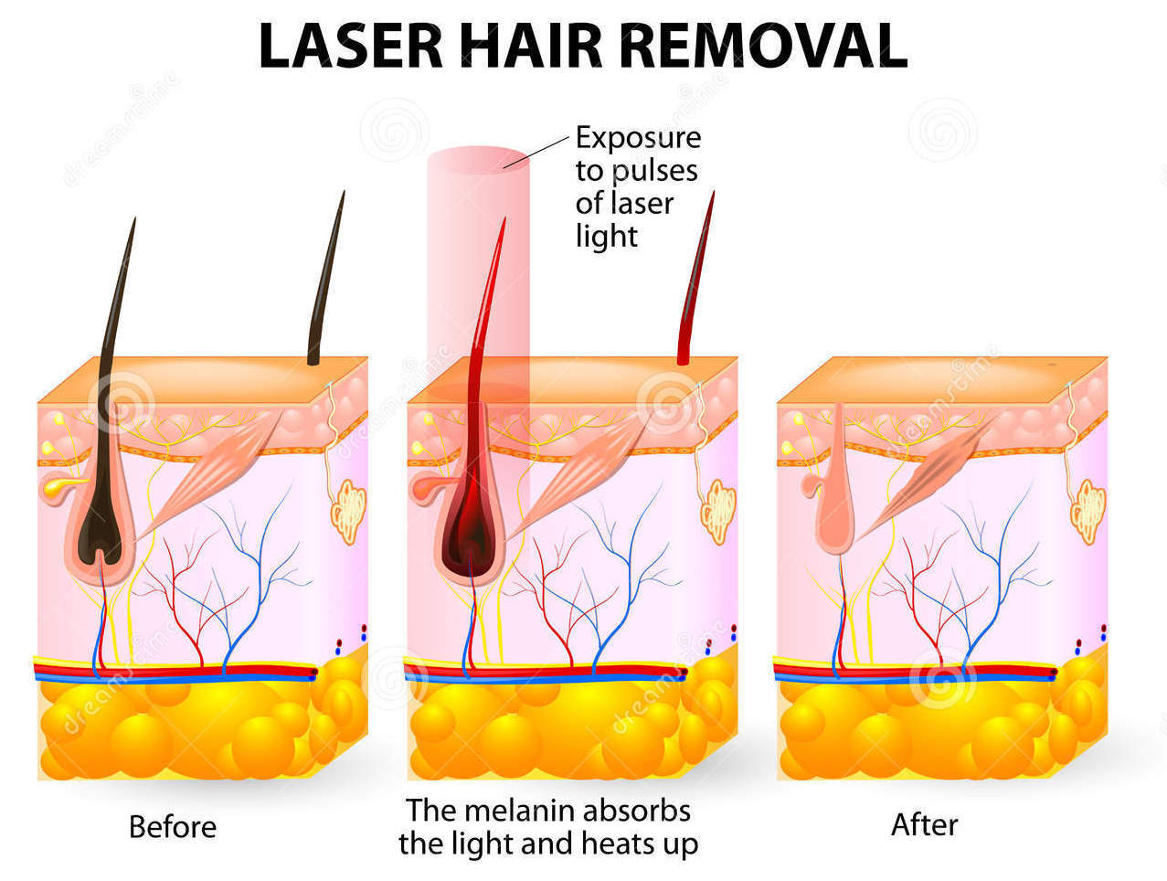 laser-hair-removal-process