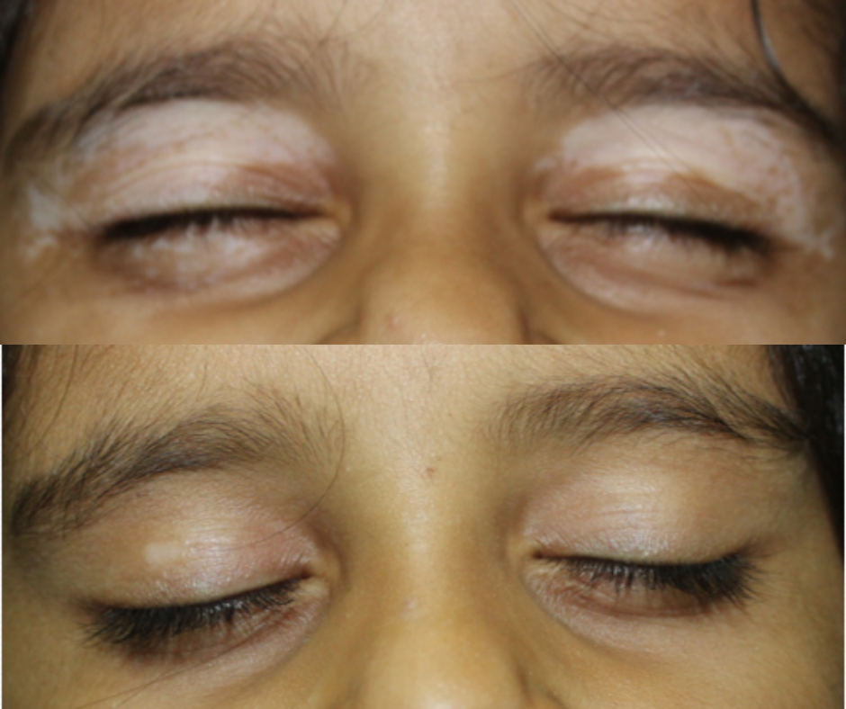 vitiligo-pre-post