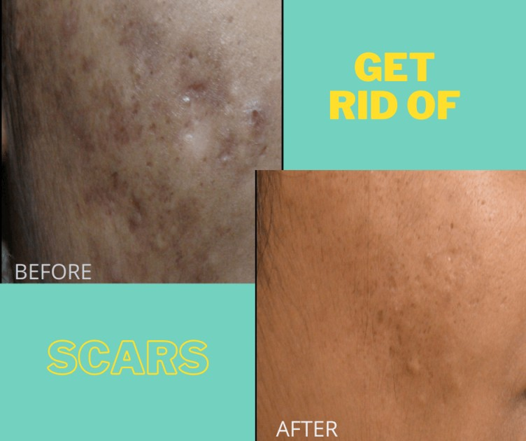 scar before after