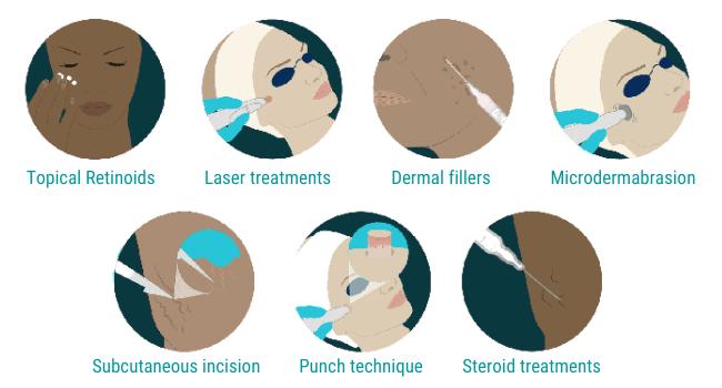 scar treatments methods