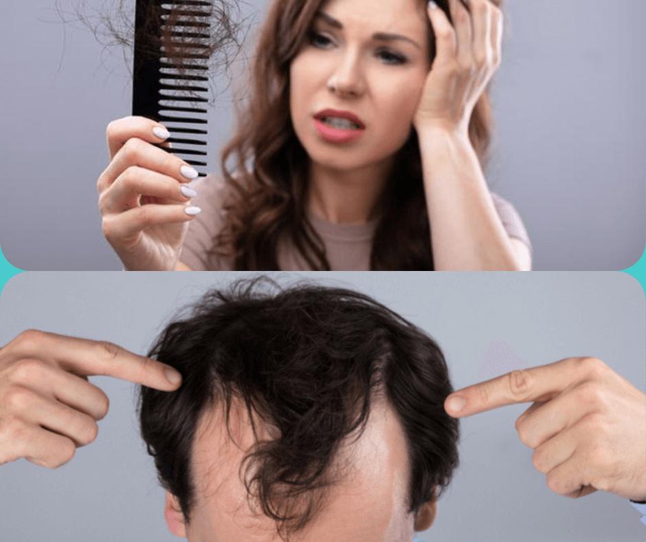 Hair Fall : How to control hair fall?, Causes, Treatment
