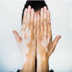vitiligofinal